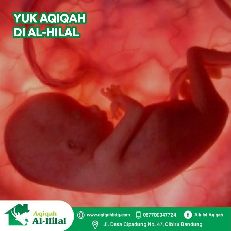 Hukum Aqiqah Bayi yang Sudah Meninggal